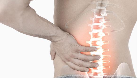 脊柱管狭窄症の写真